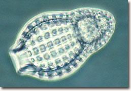 Molecular Expressions Photo Gallery: Radiolarians