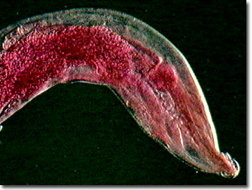 What do pinworms look like in humans 10