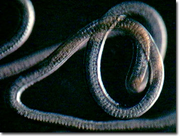 Whipworm in humans - photo#13