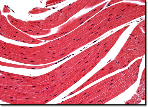 striated muscle tissue structure Cardiac muscle tissue, like skeletal muscle tissue, looks striated or striped the bundles are branched, like a tree, but connected at both ends unlike skeletal muscle tissue, the contraction of cardiac muscle tissue is usually not under conscious control , so it is called involuntary.