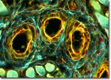 Molecular Expressions Microscopy Primer: Specialized Microscopy